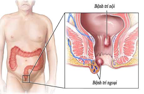 Bệnh trĩ ngoại, chữa trị bệnh trĩ ngoại tận gốc